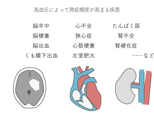 10-5本態性高血圧と心臓血管系の合併症から、高血圧によって発症頻度が高まる疾患抜き出し